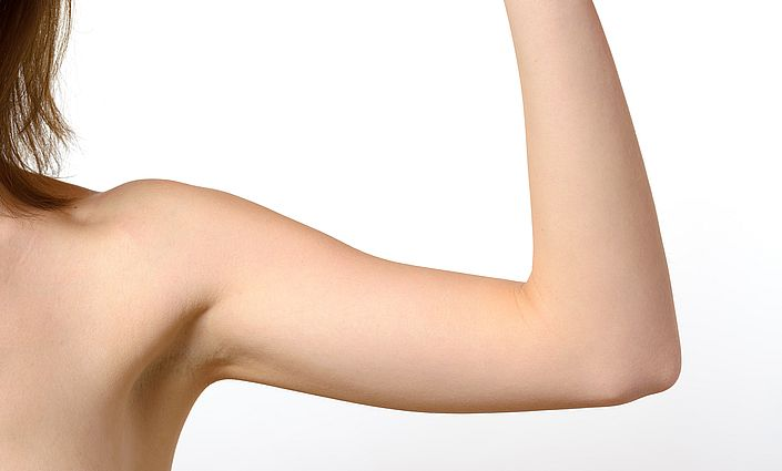 Excessive sweating surgery Melbourne