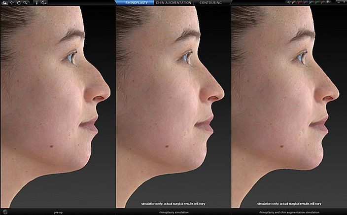 Face Sculptor Nose and Chin Plastic Surgery